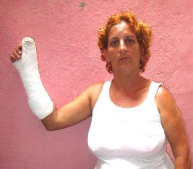La Dama de Blanco Sandra Rodríguez una de las tantas personas golpeadas por las fuerzas del régimen.